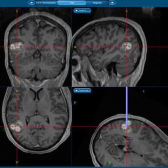 10-5 Cavernome temporal superficiel rvl par une pilepsie